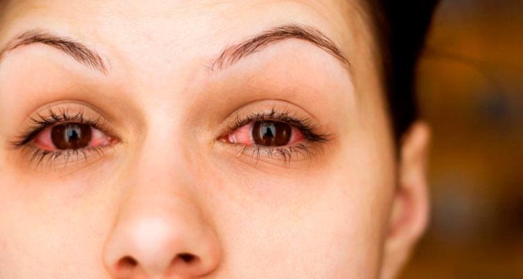 Apesar de difícil, a pessoa com conjuntivite não pode coçar o olho – Reprodução