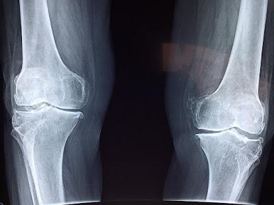 Manfaat lari Bagi Kesehatan Tulang