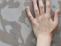 Keringat Berlebih pada Telapak Tangan atau Kaki Menurut dr. A. Sari S. Mumpuni, SpJP