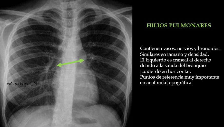 Lujo Tc De Tórax Anatomía Viñeta - Anatomía de Las Imágenesdel ...