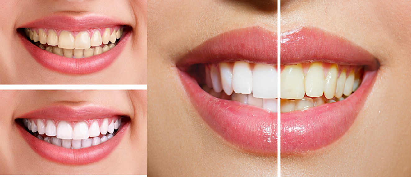 How To Whiten Your Yellow Teeth In 3 Minutes Beauty And Health Tips