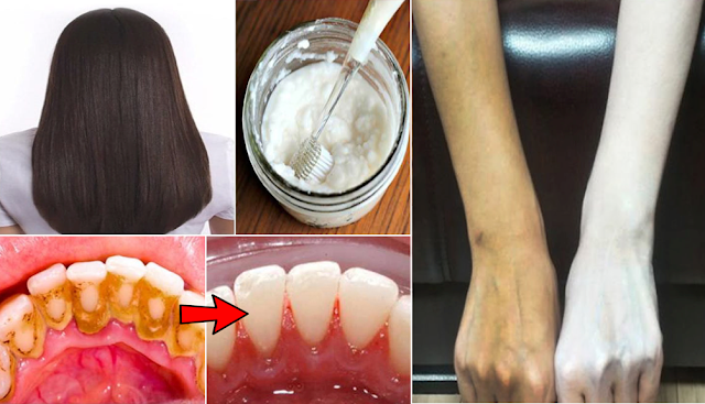 Baking Soda: Proven Safe And Effective To Soften Hair And Whiten Skin And Teeth