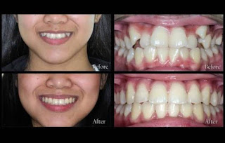Dento Hub | Braces treatment