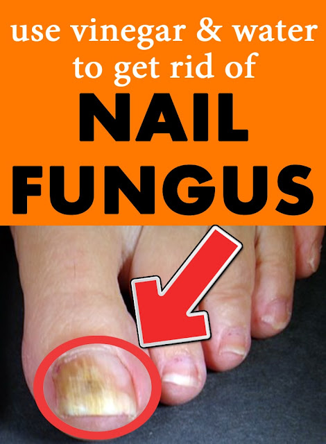 GET-RID-OF-NAIL-FUNGUS-AT-HOME