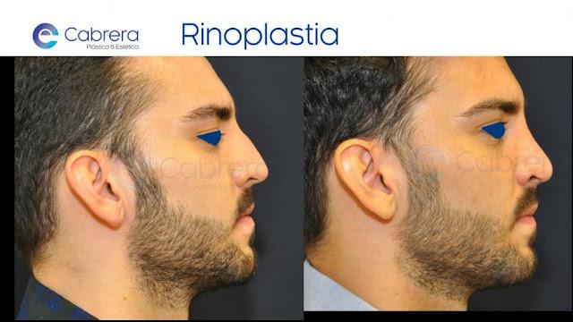 tipo de anestesia recomendada en rinoplastia