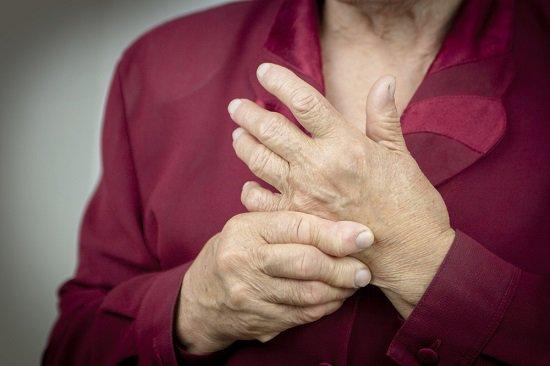 Artritis Psoriasica Tratamiento Natural
