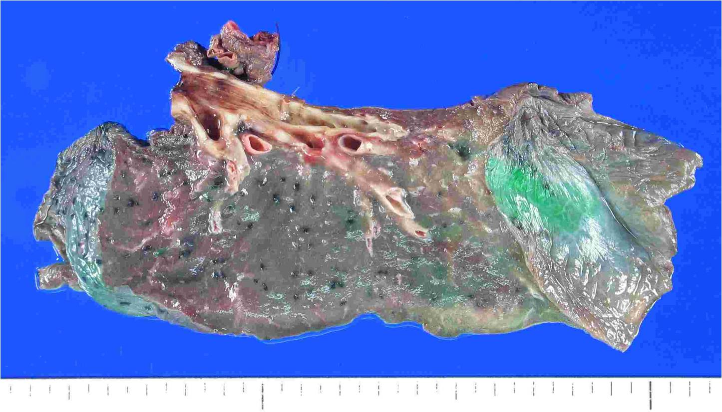 adenoid cystic carcinoma lung