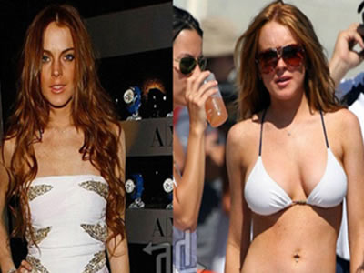 Operacion de Mamas de Lindsay Lohan