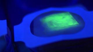 Imagen del vendaje inteligente reaccionando a una infección.