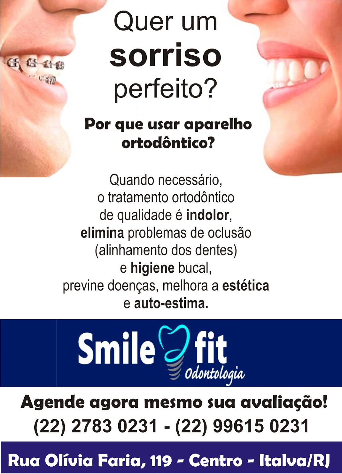 Smile Fit