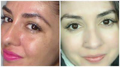 pele, melasma, como tratar melasma, resultados, ácidos, rotina de cuidados com a pele , manchas de pele