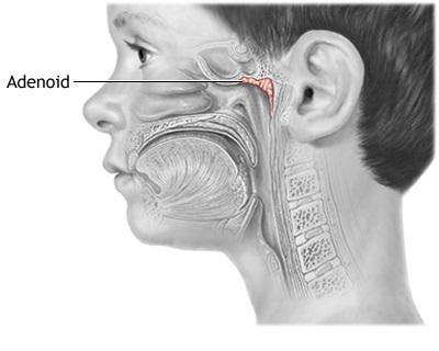 Obat adenoid pada anak