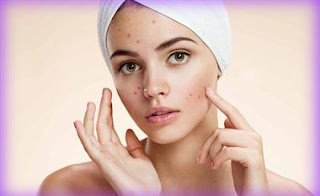 অভ্যাস ছাড়ুন ব্রণ কমান Your Pimple Solution