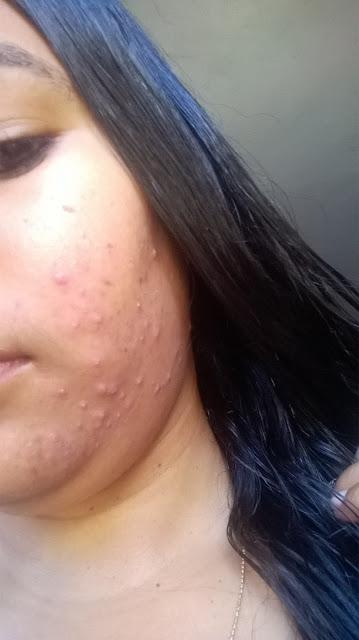Achegue-se! Como se livrar das acnes com produtos acessíveis