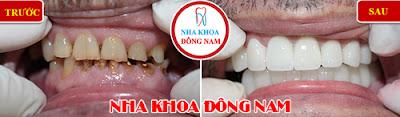 trồng răng sứ tphcm