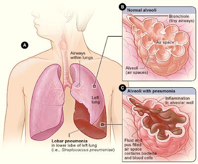 Apa Itu Penyakit Asma?