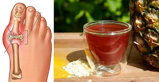 Remove Uric Acid Crystals From The Body