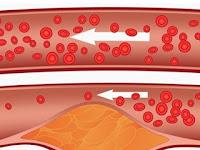 5 Ciri Kolesterol Tinggi Dalam Tubuh Yang Jarang Disadari