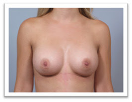 after-breast-implant