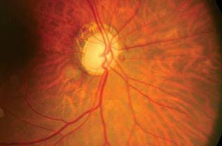 nervo ótico estrutura