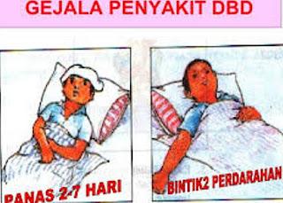 Tanda Atau Ciri dan Gejala Penyakit Demam Berdarah Atau Demam Dengue (DBD)