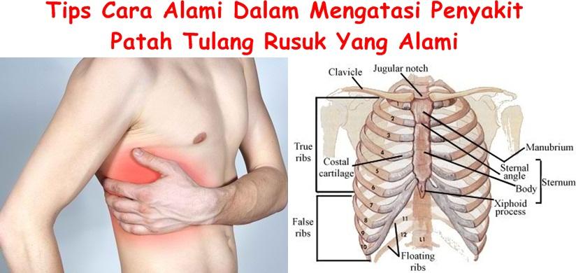 Obat Tradisional Patah Tulang Rusuk