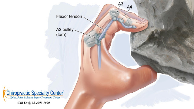 rock climbing injury of the hand