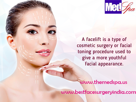 Facelift Surgery in Delhi - Themedspa.us