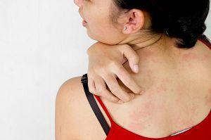 Jenis Infeksi Jamur Yang Harus Anda Ketahui