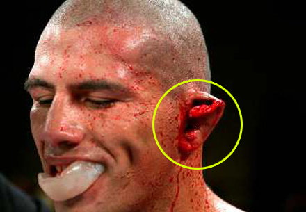 http://www.strengthfighter.com/2013/02/james-thompson-exploding-cauliflower-ear.html