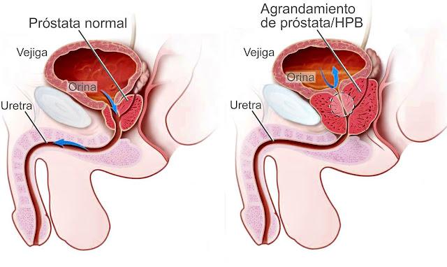 Cáncer de próstata: diagnóstico, tratamiento, factores de riesgo, prevención