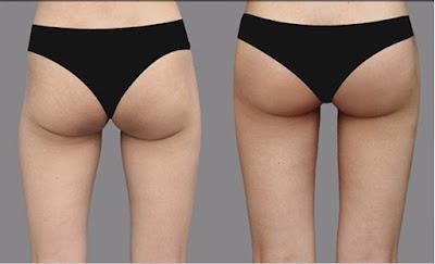 Cách giảm mỡ mông an toàn hiệu quả bằng công nghệ cao