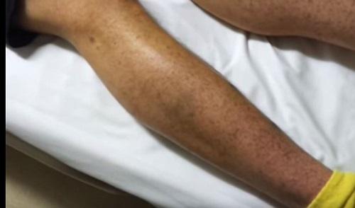 ITP Hastalığı, Nedir, Tedavisi, Ölümcülmüdür