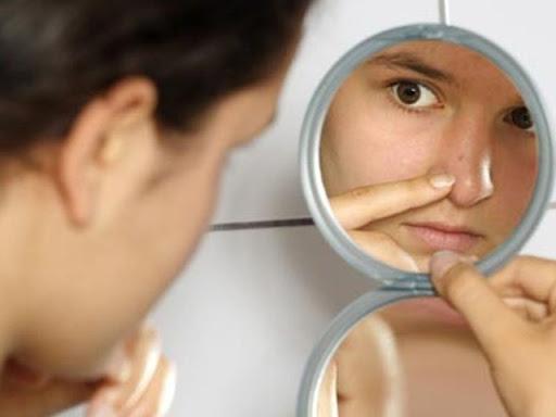 Cara Ampuh Atasi Komedo pada Hidung