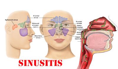 Penatalaksanaan Sinusitis, apa itu sisnusitis, penyebab dari sinusistis, bakteri sinusitis, obat sinusitis, pharmaceutical sinusitis, antibiotika sinusitis, sinusitis adalah ?  terapi pendukung sinusitis, etiologi dan patogenesis sinusitis farmasi, apoteker, obat, dokter