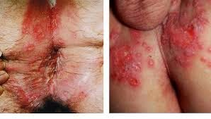 Eksim Dermatitis Psoriasis