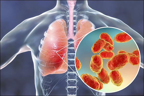 Haemophilus Influenzae Infection, Symptoms, Ayurvedic Treatment