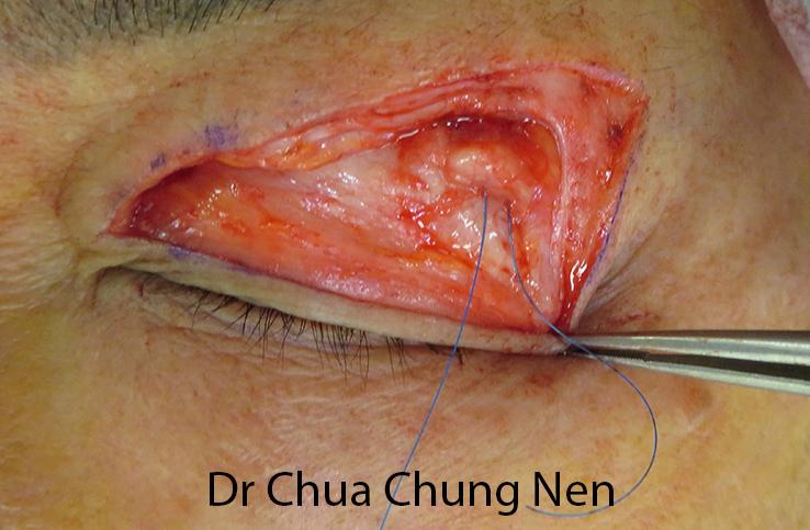 Swollen facial gland #7