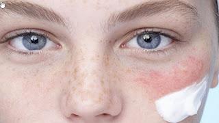 Banyak orang yang mengeluh atas kulit wajah mereka yang gampang cepat kusam serta berminyak  Ini Rahasia Merawat Kulit Wajah Sensitif !!!!