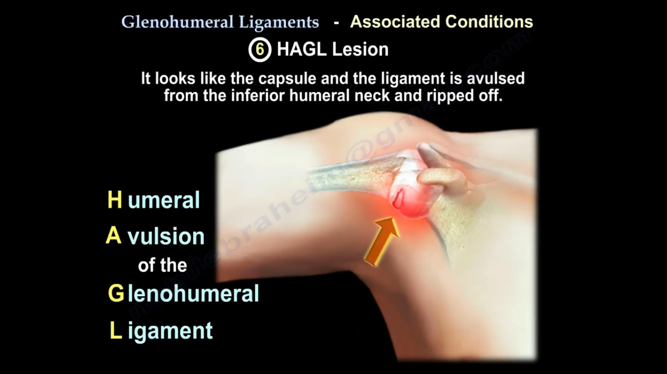 Shoulder - 7 Glenohumeral Ligament Pathologies | Grays Integrative ...