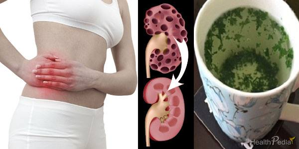How To Cleanse Your Kidneys Almost Instantly Using This Natural Home Drink-MUST TRY!!