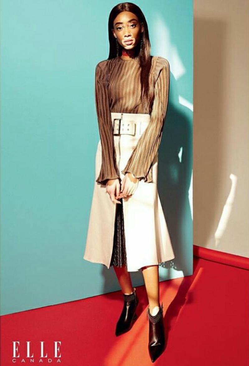 Winnie Harlow Stars in Elle Canada February 2017 Cover