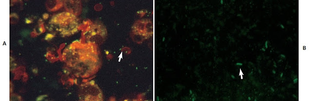 A, Legionella pneumophila in specimen smear stained by direct fluorescent antibody (DFA) technique (450×). B, Legionella pneumophila in specimen smear stained by DFA technique (1000×). Note intense peripheral staining of the organisms.
