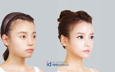Korean plastic surgery before/after