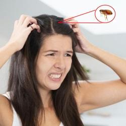 Pulga em cabelo de humano