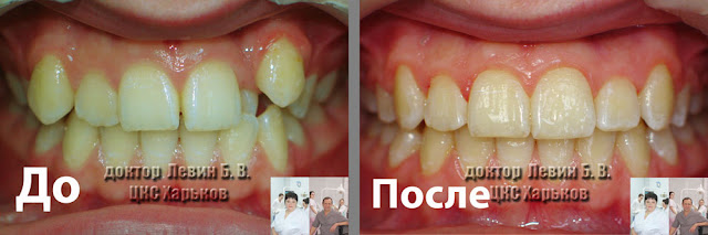 два фото фронтального вида зубов до и после лечения брекетами