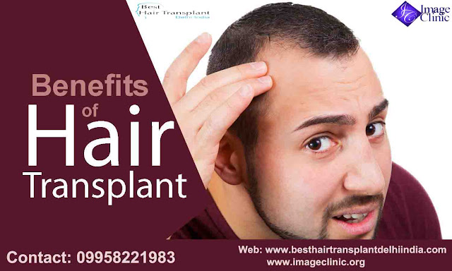 hair transplant surgery in delhi, hair loss surgery in delhi, hair transplant surgery in delhi, best hair restoration surgery in india, #scalpreduction, #prptreatment, #besthairtransplant, #hairsurgeon, #FUE, #FUT, #moustaches,  #beards , #eyebrows,  #eyelash, #mesotherapy, #hairreplacmentcost