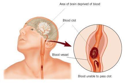 8 Signes vous avez eu un accident vasculaire cérébral sans le savoir. N'ignorez pas ces signes