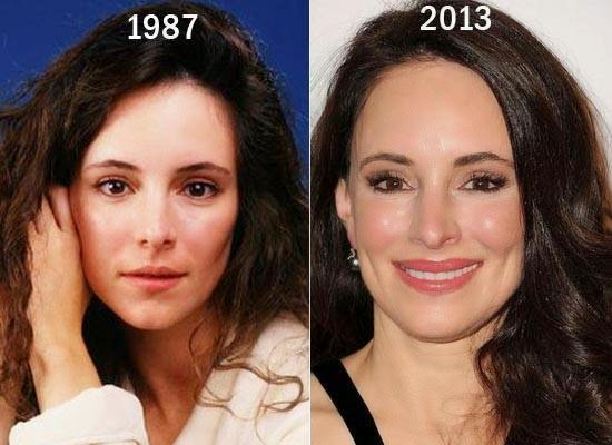 [Image: Madeleine-Stowe-Plastic-Surgery.jpg]