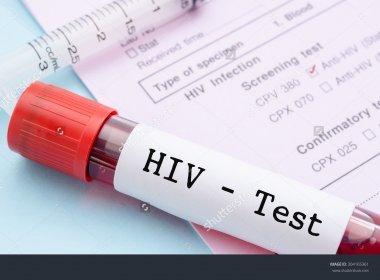 Tratamento experimental elimina vírus HIV da corrente sanguínea de paciente